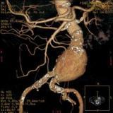Aneurisma aorta addominale: convegno 11 maggio