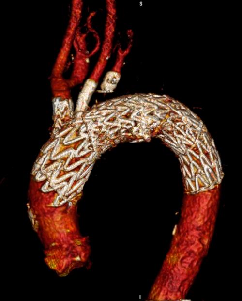 Chirurgia Vascolare: trattamenti endovascolari avanzati per patologie complesse