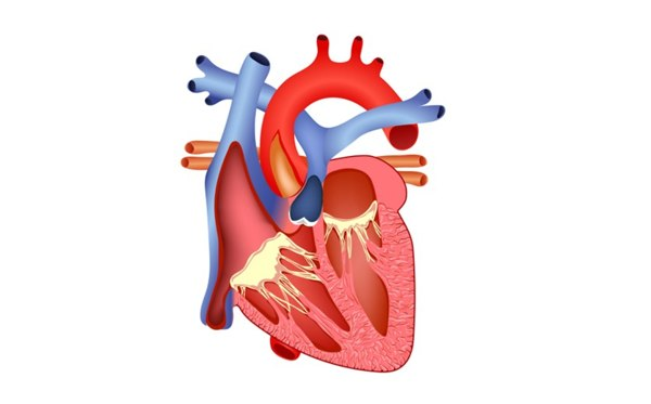 Insufficienza aortica