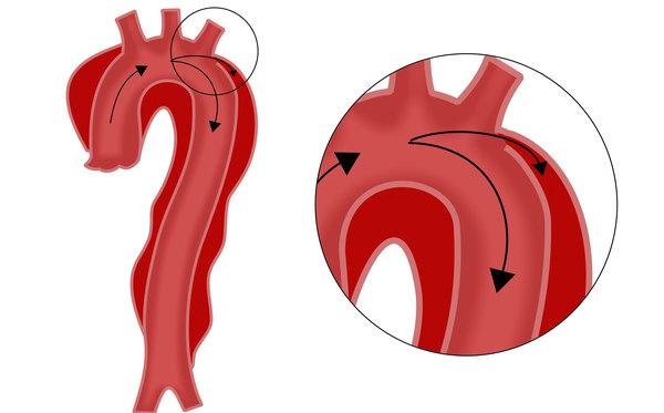 Dissezione acuta dell'aorta
