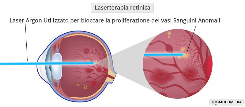 Laser Terapia Retinica Poliambulanza