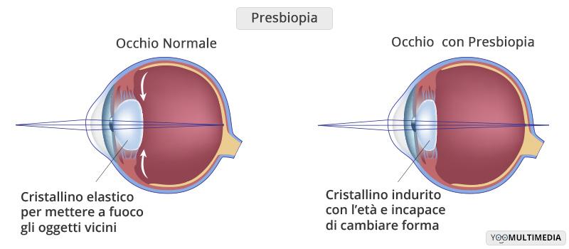 presbiopia cause