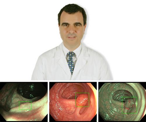 In Poliambulanza l'intelligenza artificiale applicata alla colonscopia entra nella pratica clinica